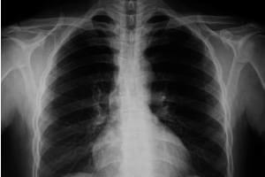 Radiografía. Una proyección de tórax