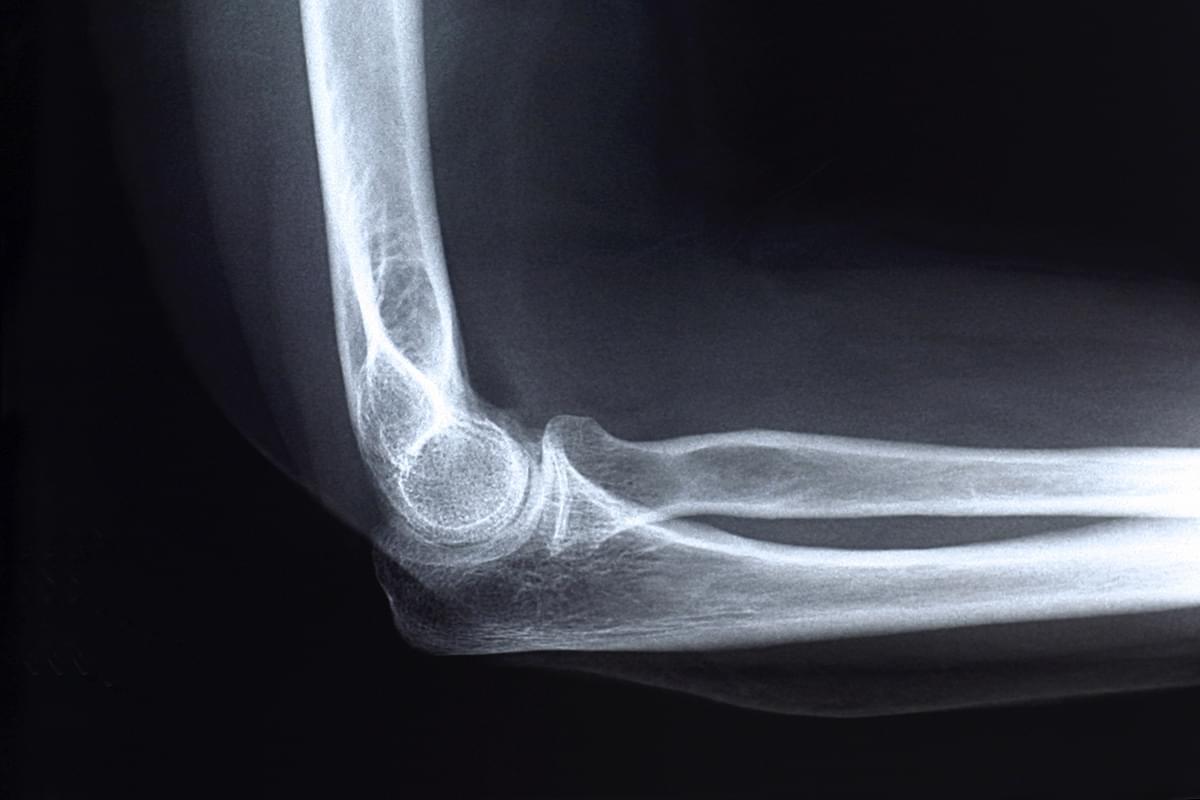Radiografía. Una proyección de brazo (húmero) o antebrazo (cúbito y radio)