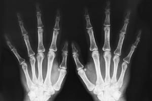 Radiografía. Una proyección de codo, muñeca, mano o dedos