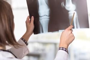 Radiografía. Tres proyecciones de rodilla. Axial (30-60-90)