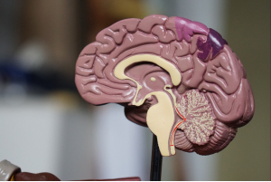 Electromiograma Cuantificado más Neurografía
