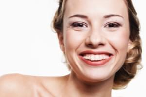 Ortodoncia fija estética de porcelana