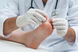 Cirugía del dedo en resorte o martillo