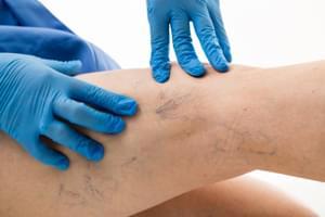 Esclerosis de varices con espuma (Tratamiento completo)