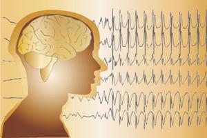 Test de efectividad de fármacos para la Epilepsia