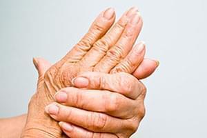 Test de predisposición genética a la osteoporosis