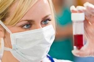 Test de diagnóstico y tratamiento de la migraña (enzima DAO)