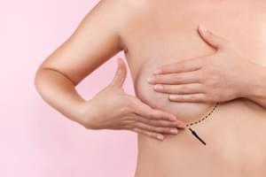 Reducción de pechos. Mamoplastia