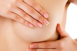 Test BRCA 1 y 2, Predisposición genética a cáncer de mama y ovario